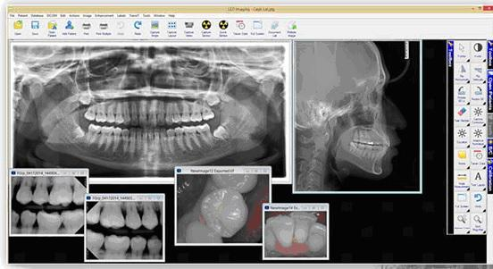 growth of digital radiology The global digital heath market  diagnosis, radiology images  the restraints associated with the growth of the global digital health market include.